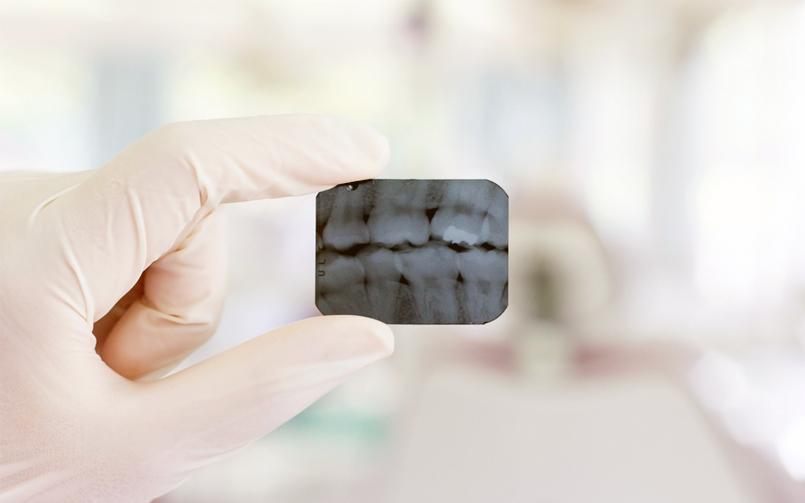 Braces - Apple DentistApple Dentist