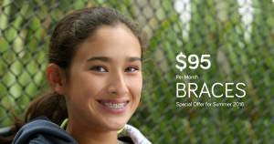 Apple-Dentist-Wilcrest-Braces-2