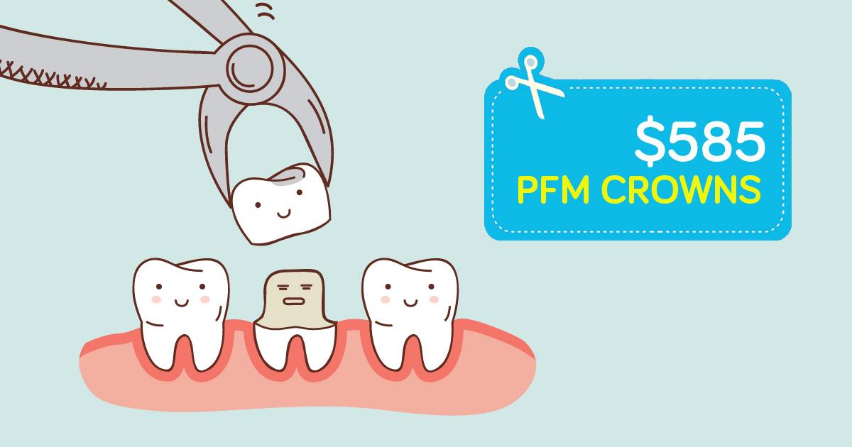 Apple-Dentist-pfm-crowns