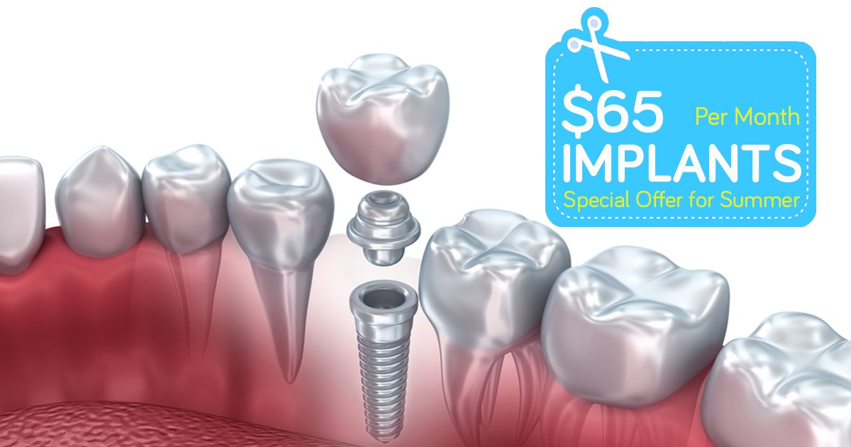 Dental-Implants-65-V2