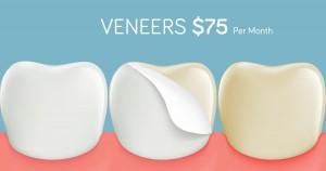 Veneers-75